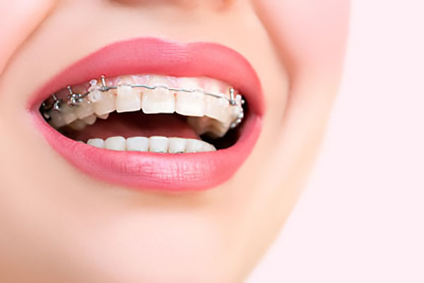 FAQs About Clear Braces