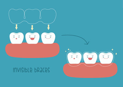 An Invisalign® Dentist Provides The Facts About Straightening Teeth