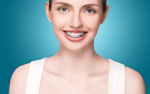Orthodontic Treatments For A Smile Makeover